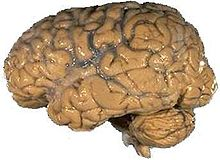 Brain Pics, Artistic Collection