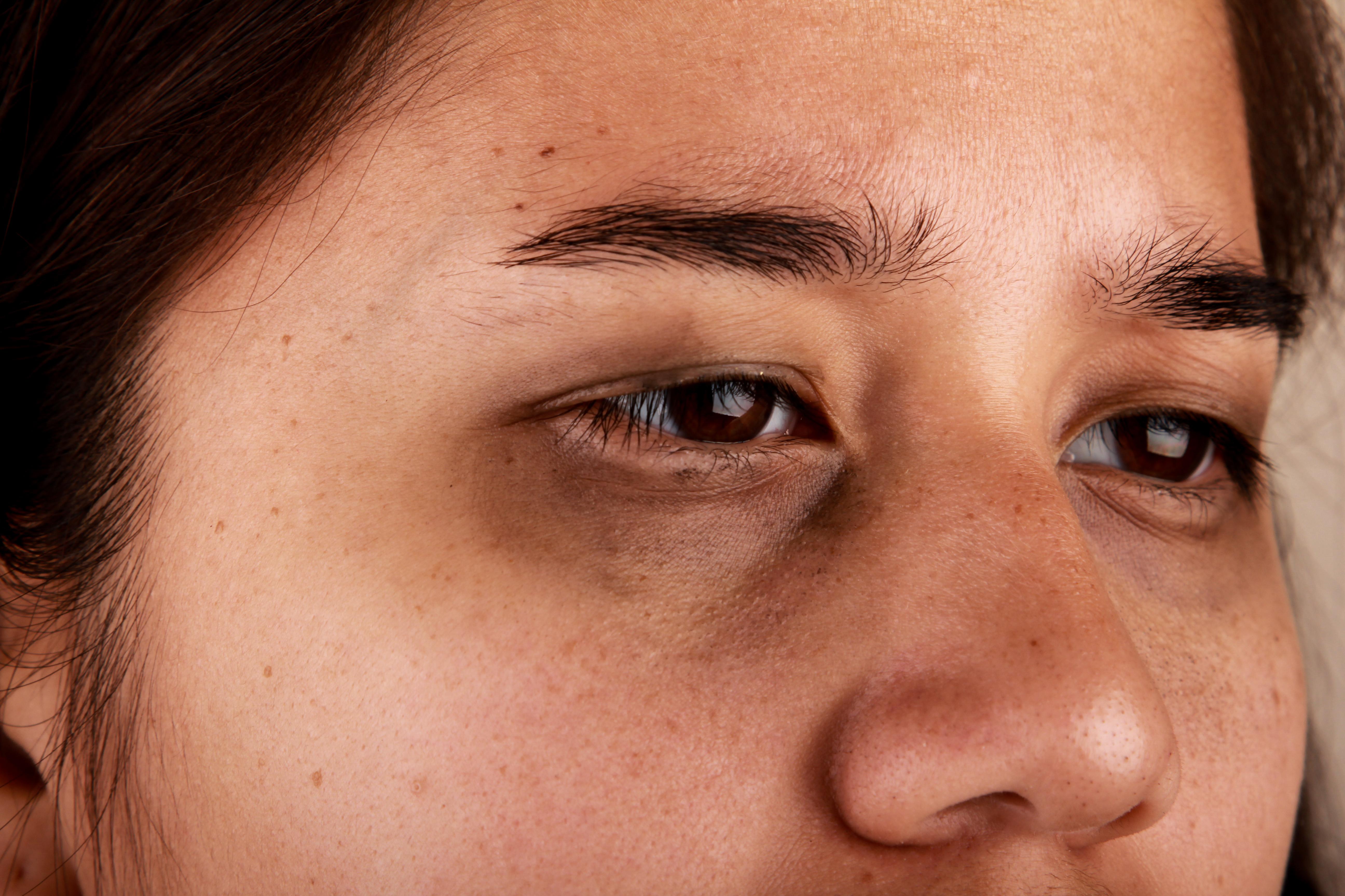 sunken eyes treatment - HD5184×3456