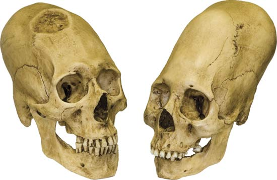 Nice wallpapers Elongated Skull 550x357px