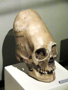 Images of Elongated Skull | 236x314
