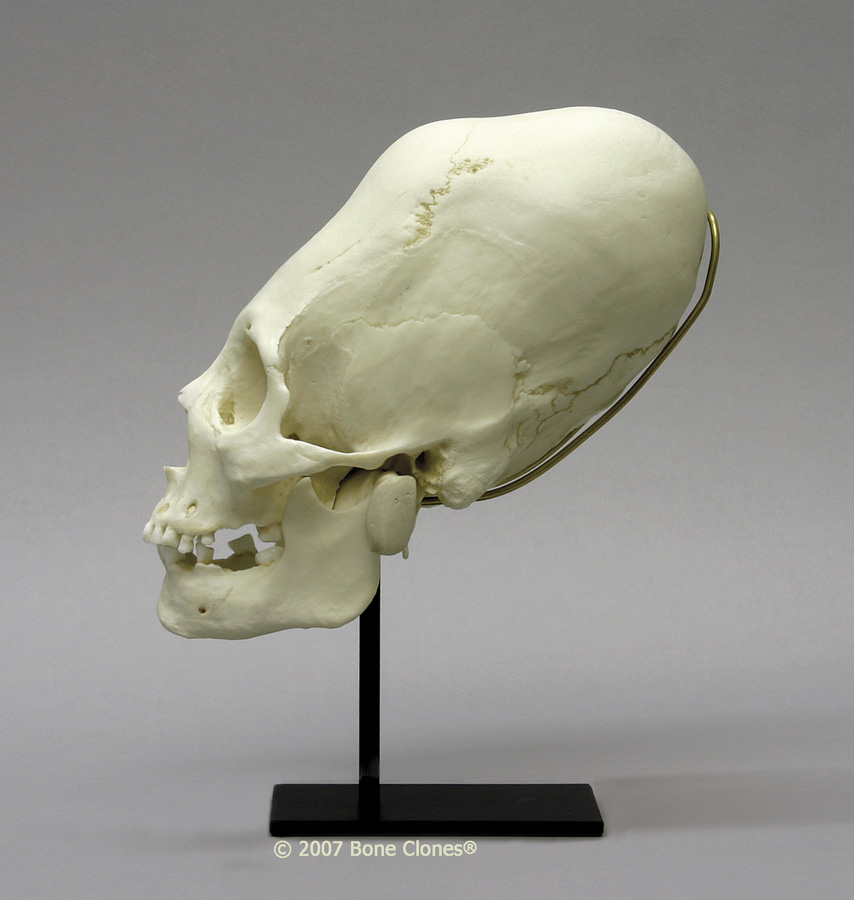 Images of Elongated Skull | 854x900