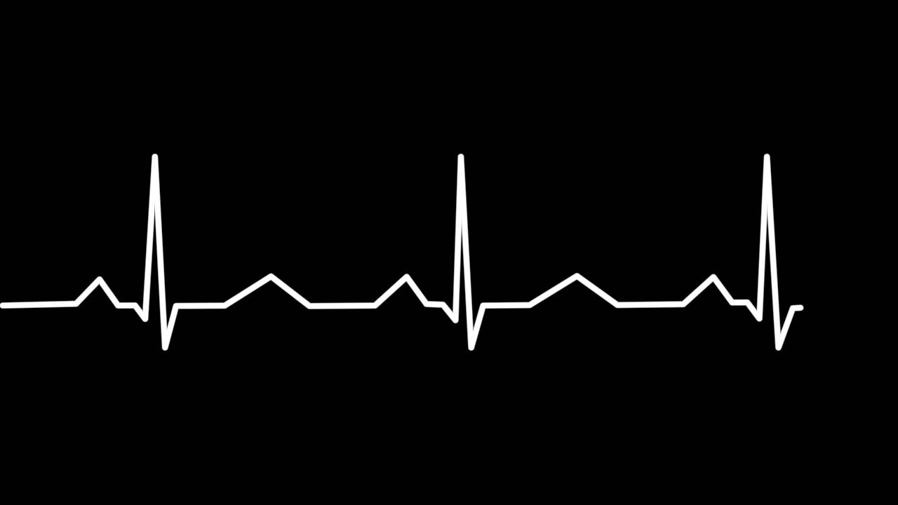 Amazing Heartbeat Wave Pictures & Backgrounds