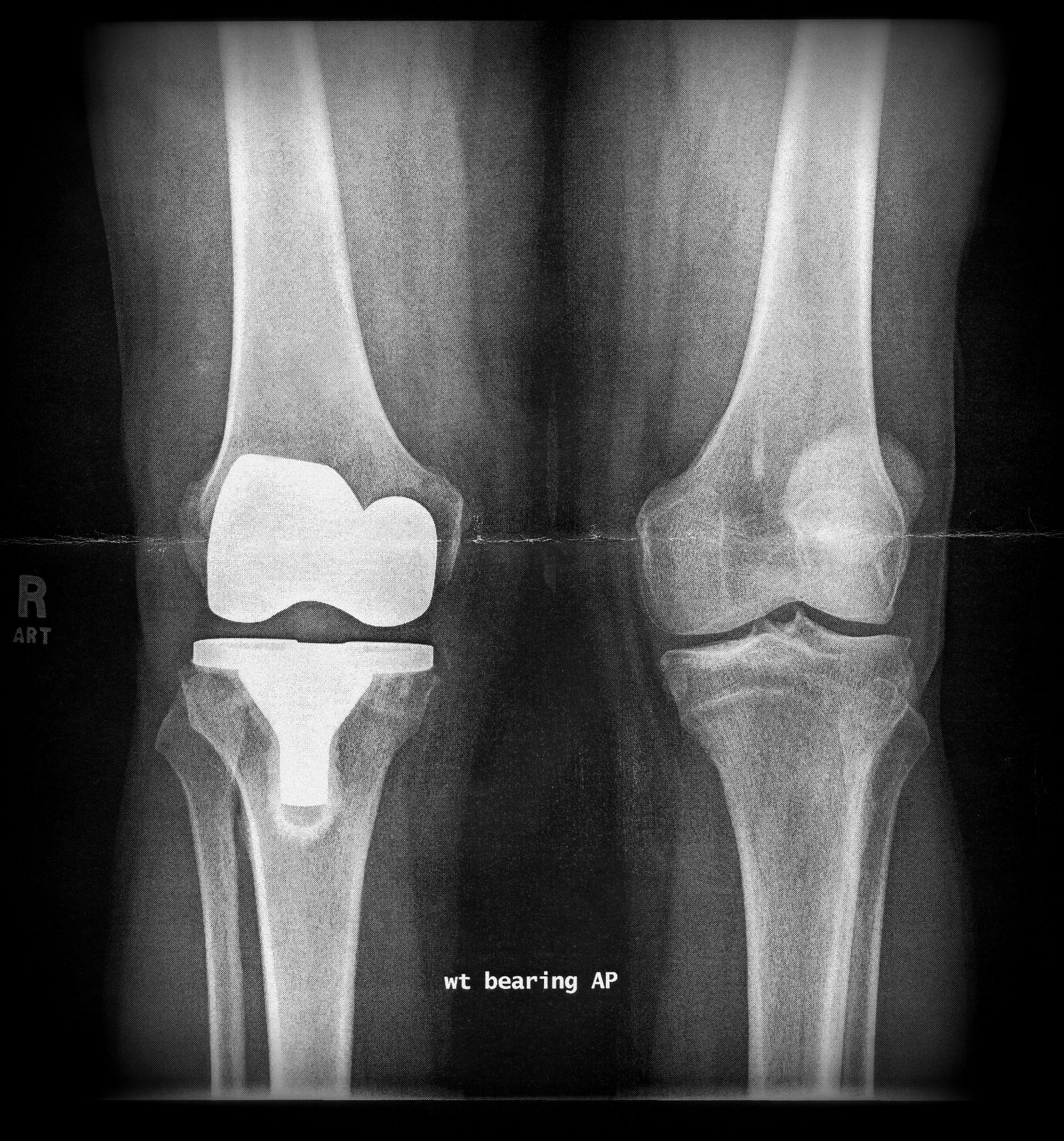 Images of X-ray | 2292x2458