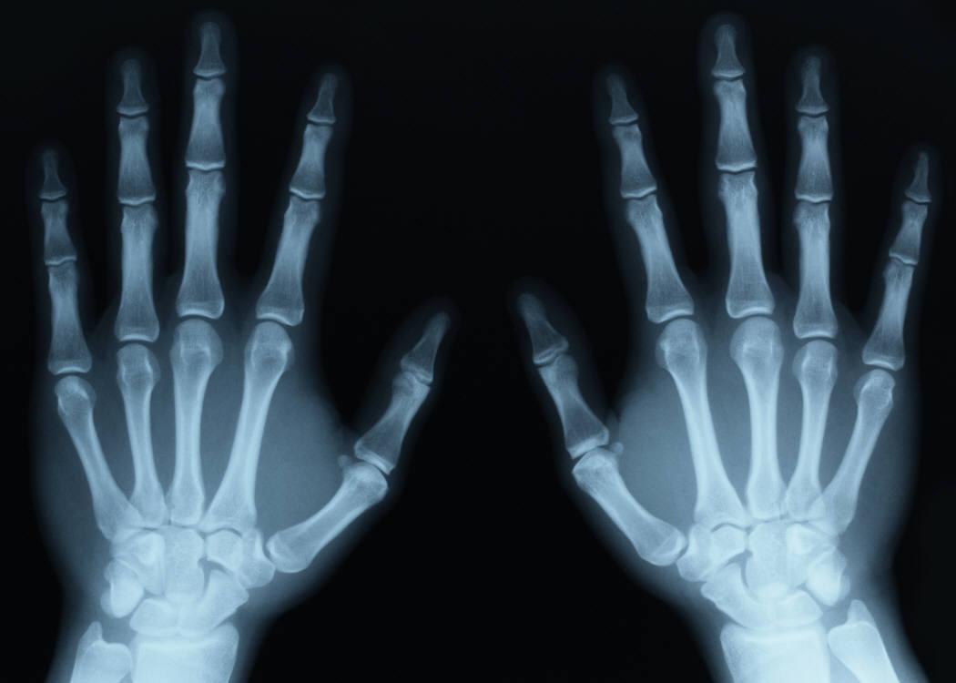 X-ray HD wallpapers, Desktop wallpaper - most viewed