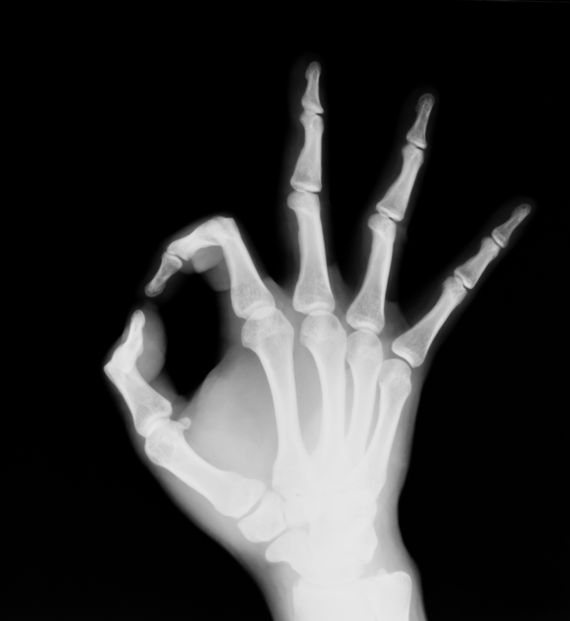 Nice Images Collection: X-ray Desktop Wallpapers