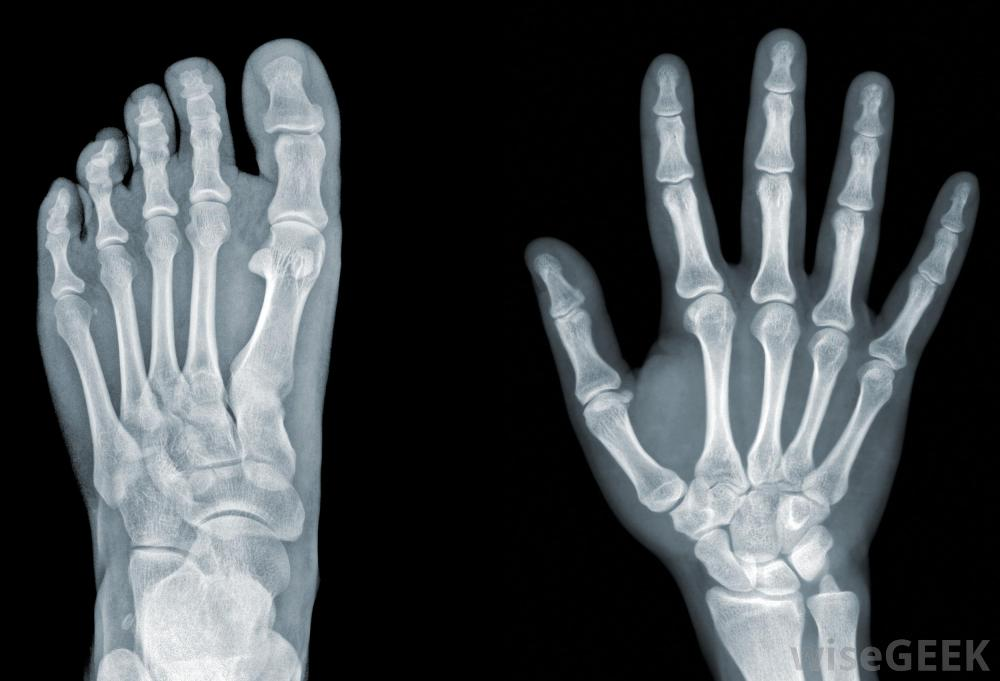 Amazing X-ray Pictures & Backgrounds